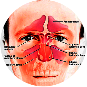ayurvedic sinus treatment in Nepal
