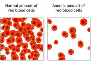 Anemic Blood RBC
